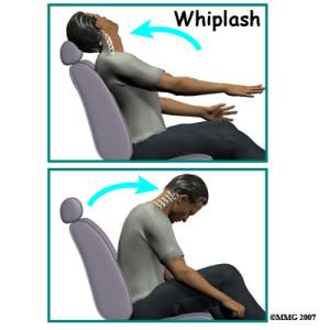 Whiplash_Injury_Car_Accident_Chiropractor