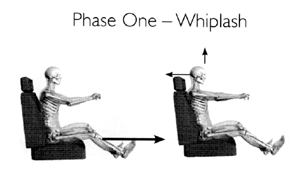 whiplash_phase_1